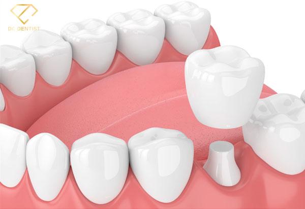 Bọc răng toàn sứ DDBIO DC, bọc răng toàn sứ DDBIO, giá bọc răng toàn sứ DDBIO DC, giá răng toàn sứ DDBIO DC, giá răng toàn sứ DDBIO, giá bọc răng toàn sứ DDBIO