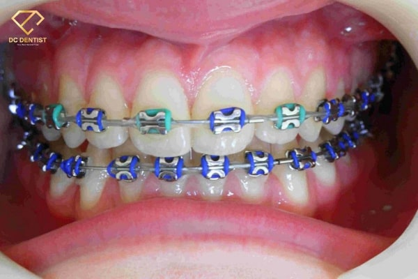 Niềng răng có hết móm không? Niềng răng móm tại Nha khoa Quốc tế DC Dentist