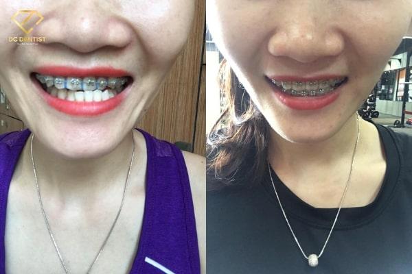 Niềng răng có hết móm không, niềng răng có hết móm, niềng răng hết móm, Hình ảnh trước và sau khi niềng răng món, niềng răng móm có hiệu quả không, bị móm có niềng răng được không