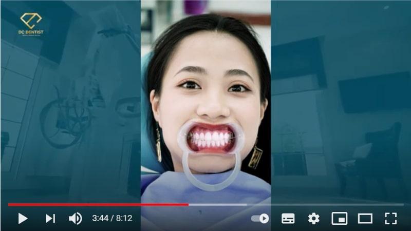 Những điều cần biết về niềng răng tại Nha khoa Quốc tế DC Dentist