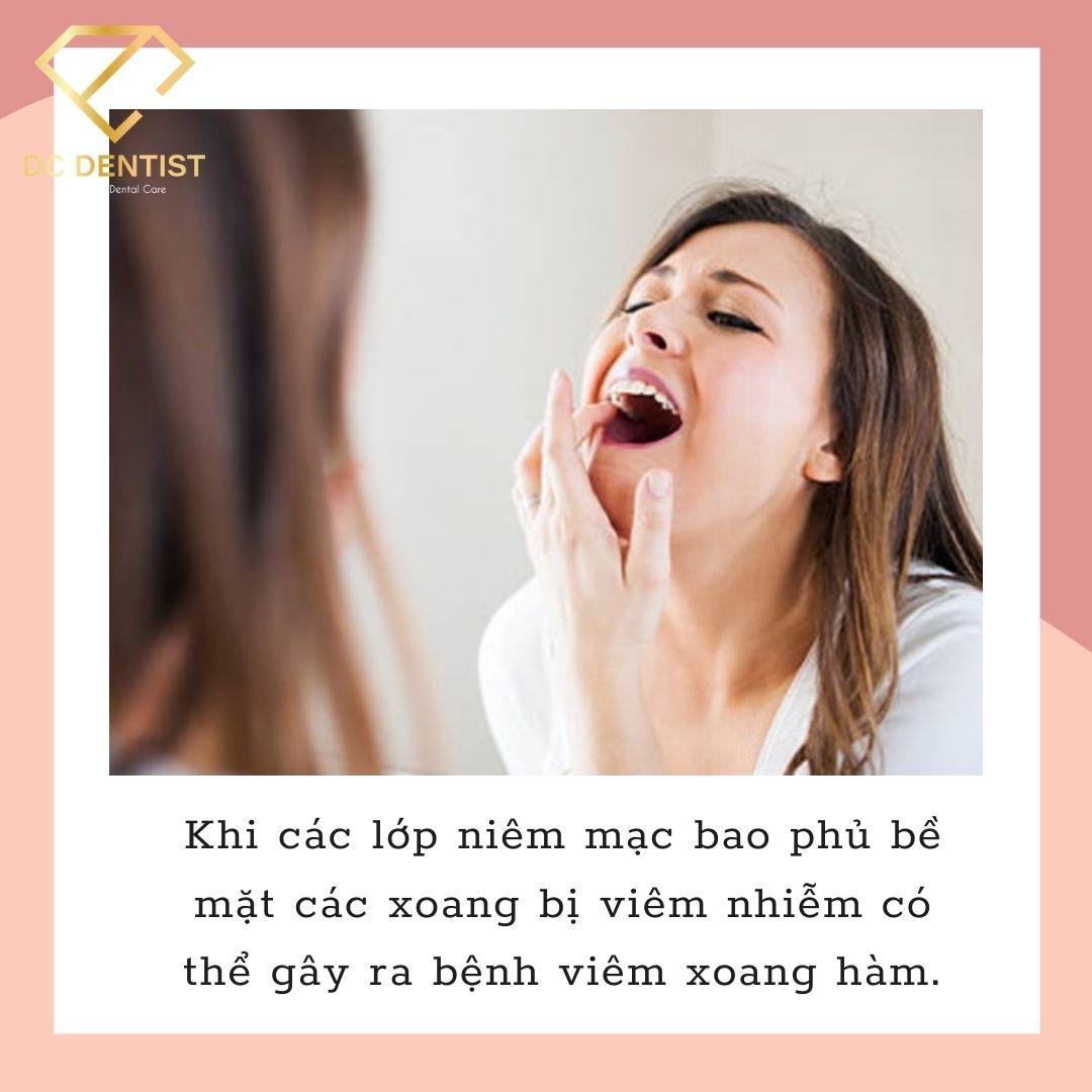 viêm xoang hàm là gì, viêm xoang răng, viêm xoang nhức răng, viêm xoang đau răng, viêm xoang có gây đau răng, viêm xoang hàm và cách điều trị, viêm xoang hàm trái, viêm xoang hàm mạn tính là gì, viêm xoang hàm triệu chứng